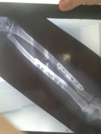 右腕骨折しました